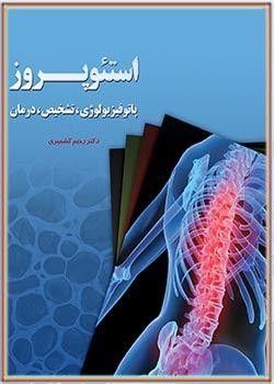 استئوپروز (پاتوفیزیولوژی، تشخیص، درمان)